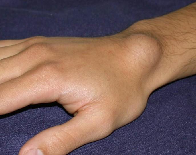 lumps under the skin fibromyalgia - Arthritis Treatment ...