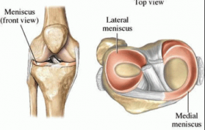 knee cartilage or meniscal tear anatomy diagram