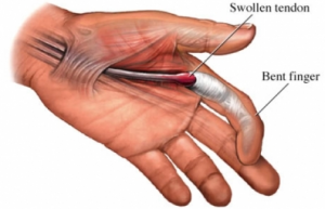 stenosing tenosynovitis is also known as trigger finger