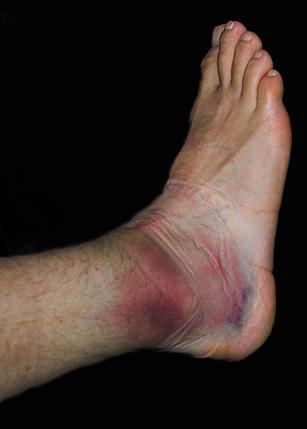 Ankle%20sprain