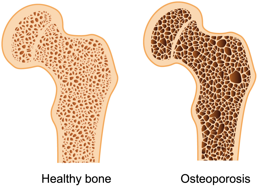 27+ Does osteopenia turn into osteoporosis info
