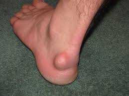image of Ganglion Cyst of the foot